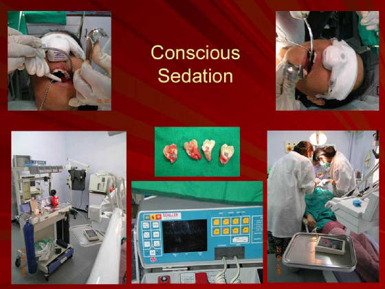 Coniscous Sedation