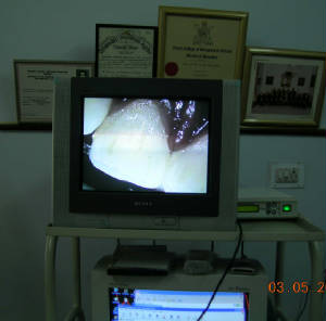 Microscope Enhanced Dentistry